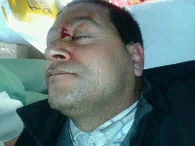 hombre herido en la frente