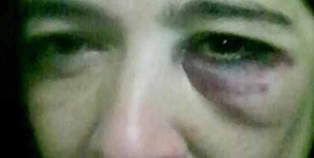 mujer golpeada