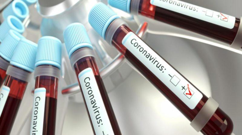 COVID-19 en San Pedro: seis casos positivos, porcesados en laboratorio privado